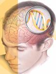 L'ipnosi ripara il cervello