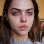 Che brutta cera: la salute la si legge dal volto