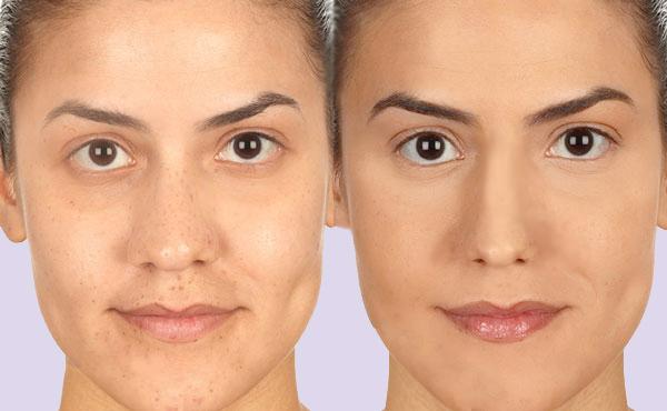 La psicologia aiuta la cosmetica