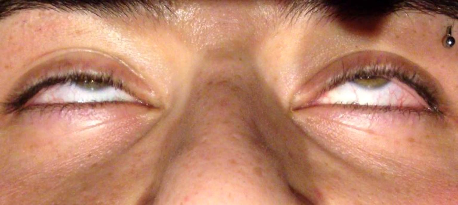 occhi durante l'ipnosi